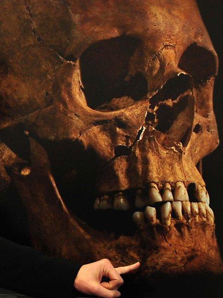 Skeleton skull of Richard III