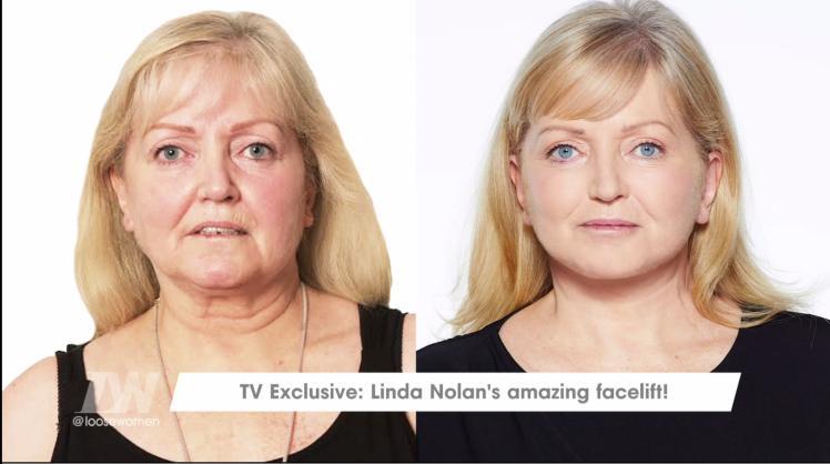 Linda Nolan Facelift