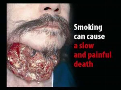 Smoking can cause a slow and painful death.