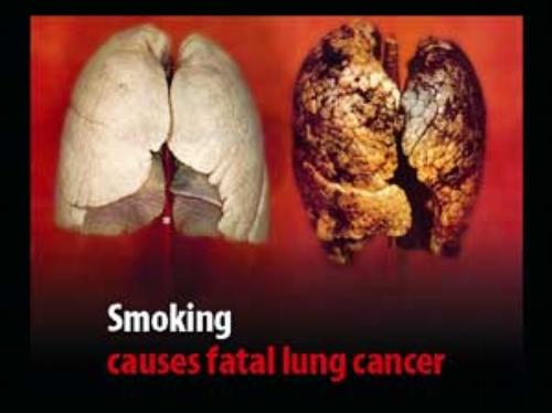 Smoking causes fatal lung cancer