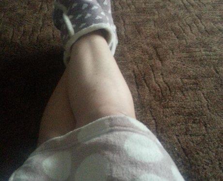 Leg Shots 3