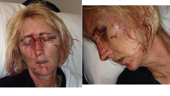 Shopworker's injuries