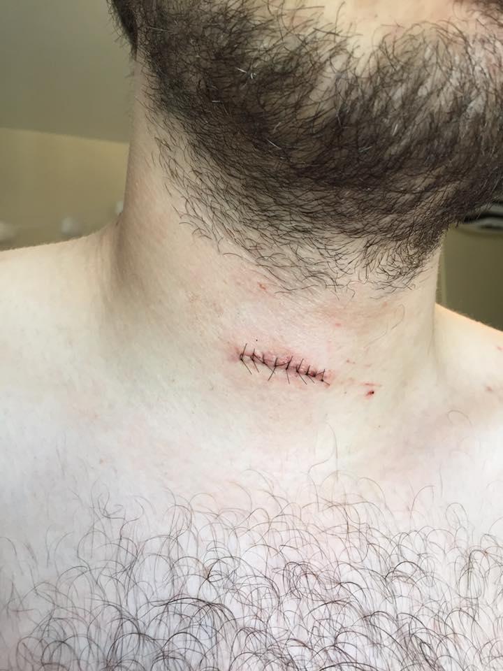injury neck owen