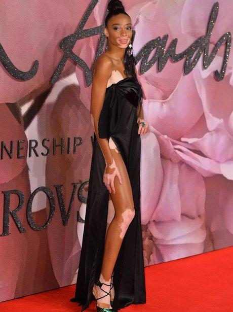 Winnie Harlow British Fashion Awards 2016