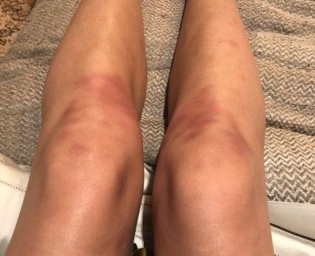 A 'Work Hazard' Leaves Chrissy Tiegan's Legs Bruis