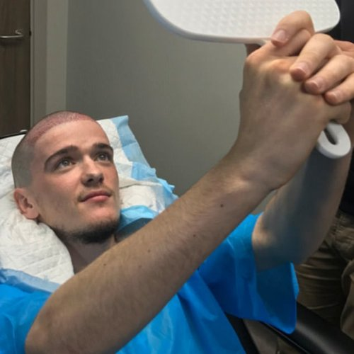 George Sampson hair transplant