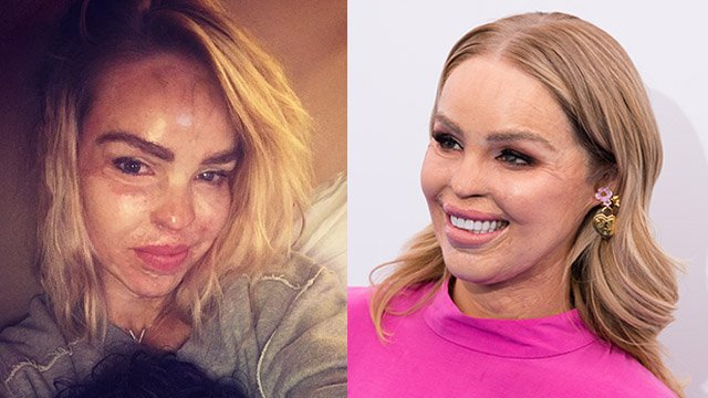 Katie Piper Acid Attack What Happened To The Model And What Did She Do Before