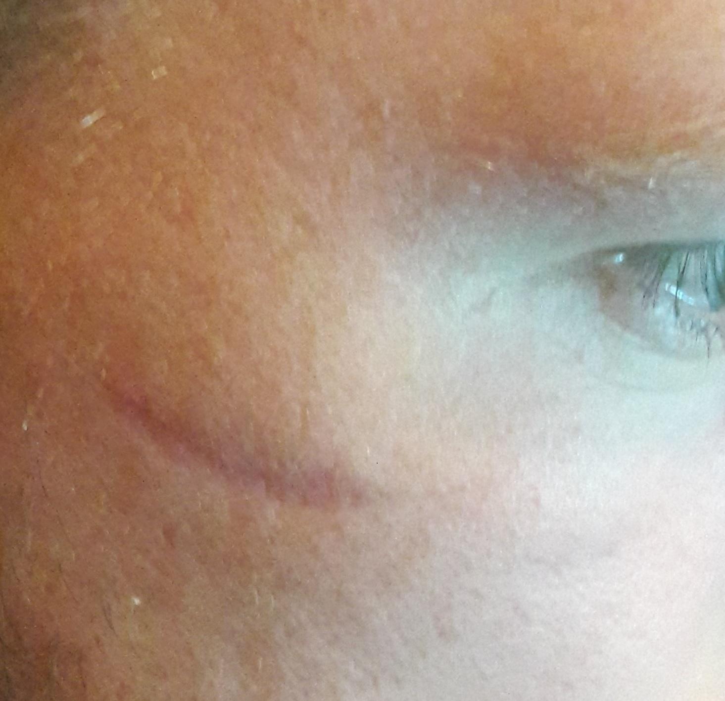 Henley attack scar